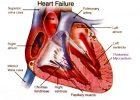 Pengobatan Jantung Dengan Melia Propolis Asli